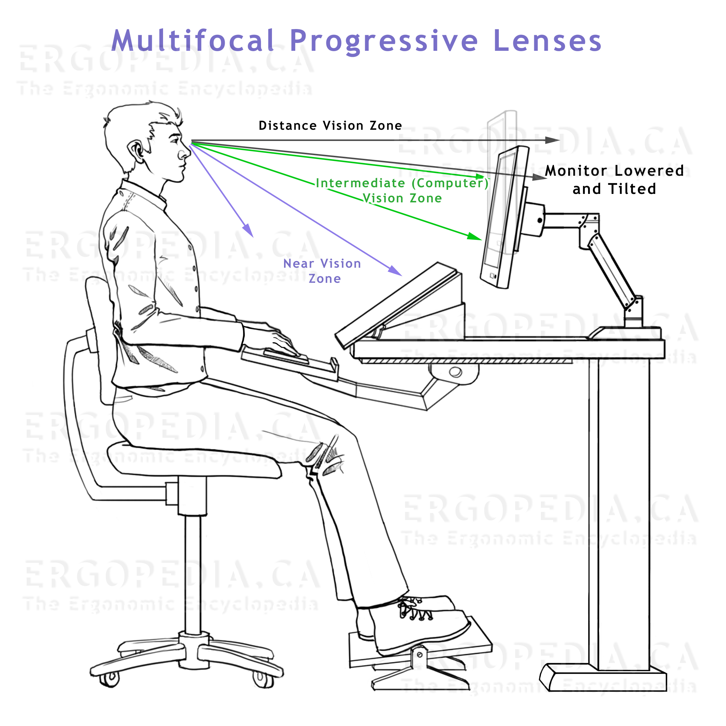 Graphic Showing Factors to be Considered when Working             with Progressive Lenses